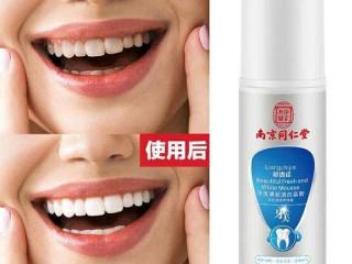 口臭怎么办?牙龈痛怎么办?牙美帮你